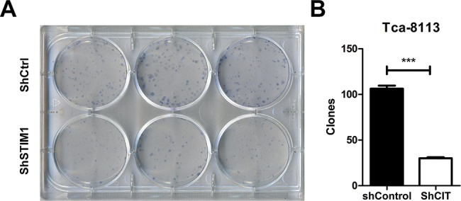 Clonogenic ability was suppressed in Tca-8113 cells by STIM1 knockdown ( A ) Pictures of colony formation by Tca-8113 cells infected with lentivirus expression either shCtrl or shSTIM1 using Giemsa staining on the 14th day. ( B ) Quantitation of clone number formed by Tca-8113 cells infected with lentivirus expression either shCtrl or shSTIM1. The results represent mean ± S.E.M.; *** P