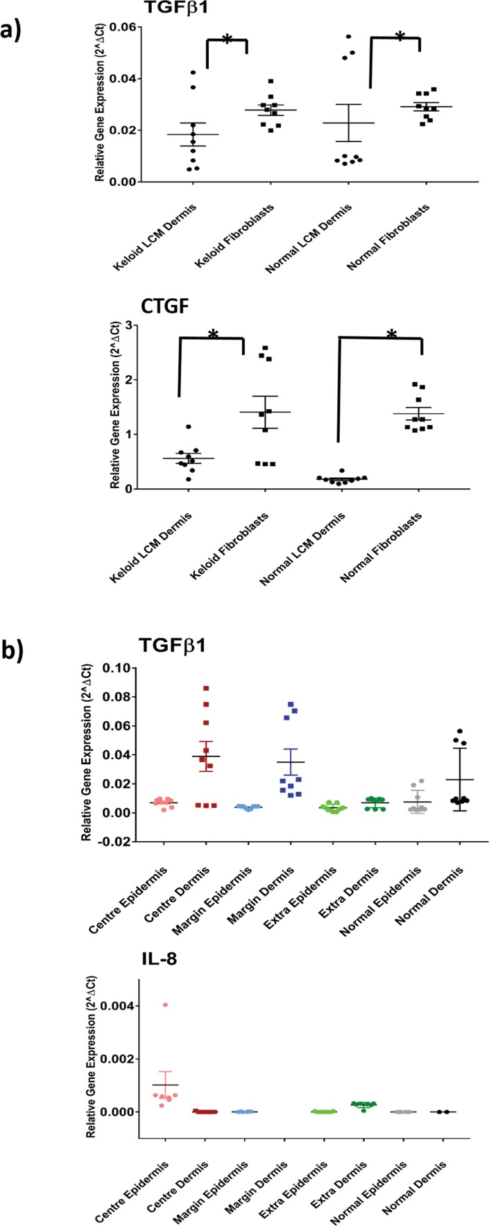 Site-specific contribution to differential gene expression in KD. (A) Comparison of gene expression between laser-captured dermal tissue ( in situ ) and fibroblasts for both keloid and normal skin. <t>qRT-PCR</t> graph for both TGFβ1 and CTGF (additional examples found in S2A Fig ). All data are mean ± SEM for at least three independent experiments. B) qRT-PCR for TGFβ1 and interleukin-8 ( IL-8 ) showing relative contributions of different keloid sites to overall expression and comparison with normal skin (additional genes available in S2B Fig ). Data are mean ± SEM where * p-value