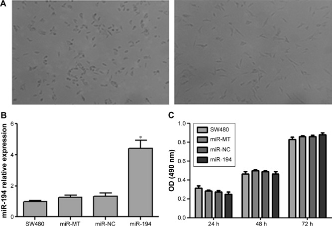 MiR-194 reveals no significant effect on CRC cell proliferation. Notes: ( A ) The changes in morphology before and after transfection were observed by inverted microscopy (×100). ( B ) SW480 cells were infected with miR-194 or negative control (miR-NC) or mock transfection control (miR-MT) lentivirus, and the expression of miR-194 was analyzed by <t>qRT-PCR.</t> ( C ) MTT assays were performed to investigate the proliferation ability of CRC cells. * P