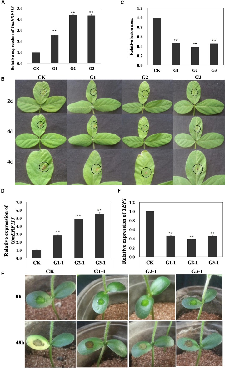 Responses of living of GmERF113 transgenic soybean plants to P. sojae . (A) Quantitative real-time PCR (qRT-PCR) analysis of GmERF113 expression levels in T 3 transgenic soybean plants. (B) Disease symptoms on the leaves of T 3 transgenic and non-transgenic lines infected with P. sojae race 1 inoculum at 2 and 4 days. (C) The lesion areas of the transgenic and non-transgenic lines were determined 4 days after inoculation with P. sojae . (D) qRT-PCR analysis of GmERF113 expression levels in T 4 transgenic soybean plants. (E) Disease symptoms on the cotyledons of T 4 transgenic and non-transgenic lines 48 h after treatment with P. sojae zoospore suspension. (F) qRT-PCR analysis of P. sojae relative biomass based on the transcript level of the P. sojae TEF1 gene in infected cotyledons 48 h after incubation with P. sojae zoospore suspension. The experiment was performed using three biological replicates with three technical replicates each and statistically analyzed using Student's t -tests ( ∗∗ P