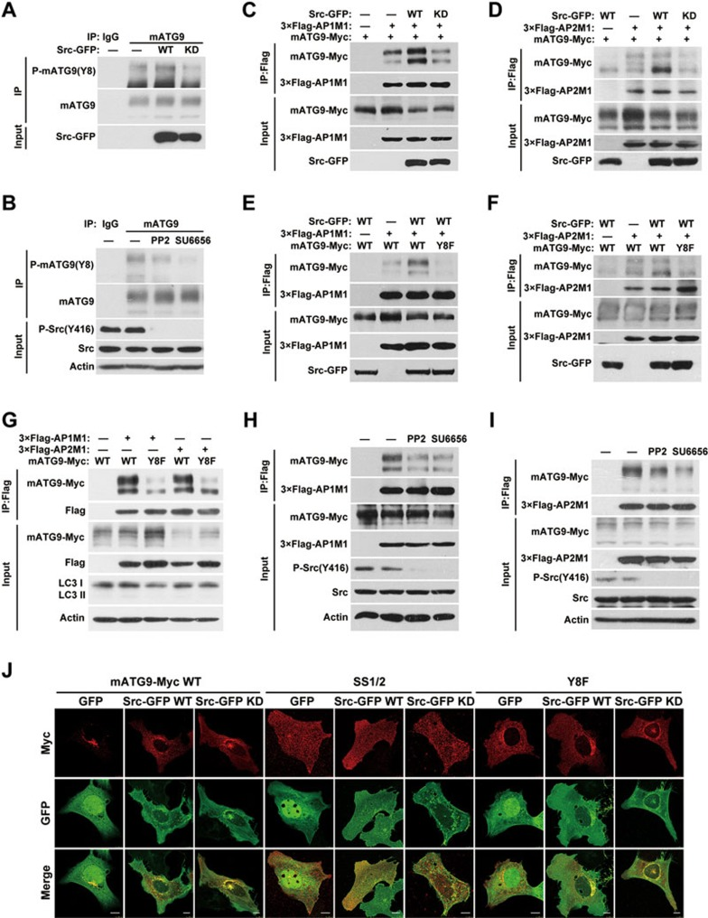 Src phosphorylates mATG9 at Y8 to promote constitutive trafficking of mATG9. (A) HeLa cells were transfected with Src-GFP or kinase-dead (KD) Src for 24 h, and collected for immunoprecipitation with anti-mATG9 antibody. (B) HeLa cells were treated with the Src kinase inhibitors PP2 (10 μM) or SU6656 (10 μM) for 12 h and collected for immunoprecipitation with anti-mATG9 antibody. (C , D) HEK293T cells were co-transfected with mATG9-Myc, 3×Flag-AP1/2M1 and GFP vector, Src-GFP or KD Src for 24 h, and then collected for immunoprecipitation with anti-Flag antibody. (E , F) HEK293T cells were co-transfected with WT mATG9 or the Y8F mutant, 3×Flag-AP1/2M1 and Src-GFP for 24 h, and then collected for immunoprecipitation with anti-Flag antibody. (G) HeLa cells were co-transfected with WT mATG9-Myc or the Y8F mutant and 3×Flag-AP1/2M1 for 24 h, and then collected for immunoprecipitation with anti-Flag antibody. (H , I) HeLa cells were co-transfected with mATG9 and 3×Flag-AP1/2M1 for 24 h, and then treated with vehicle or the Src kinase inhibitors PP2 (10 μM) or SU6656 (10 μM) for 12 h. Cells were collected for immunoprecipitation with anti-Flag antibody. (J) U2OS cells were co-transfected with WT mATG9-Myc or the indicated mutants (red) and GFP vector, Src-GFP or KD Src (green) for 24 h, and then fixed and immunostained with anti-Myc antibody. Scale bar, 10 μm. See also Supplementary information, Figure S3B-S3C .