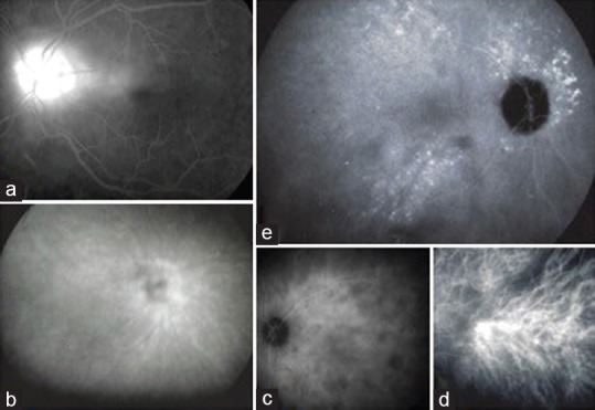 (a) Fluorescein angiography showing disc hyperfluorescence (optic disc score of 3/3). (b) ICGA showing hyperfluorescence of the optic disc (score of 3/3). (c) ICGA showing posterior pole dark dots (score of 2/2). (d) ICGA showing early stromal hyperfluorescence at the posterior pole (score of 1/1). (e) ICGA showing hyperfluorescent pinpoints (score of 3/3). ICGA, indocyanine green angiography.