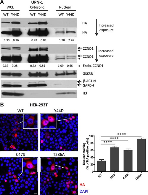 Subcellular localization of CCND1 mutants ( A ) Cytosolic and nuclear extracts were prepared as described in Materials and Methods from UPN-1 cells that stably expressed WT or Y44D CCND1. The extracts (30 μg per lane) were immunoblotted with indicated antibodies. β-ACTIN or GAPDH and histone H3 were used to confirm cytosolic and nuclear fractions, respectively. Numbers below the blots are relative densitometric values of corresponding bands after normalization to β-ACTIN (for WCL and Cytosolic) or histone H3 (for Nuclear) loading controls. WCL, whole cell lysates; Endo., endogenous. ( B ) Subcellular distribution of WT and mutant CCND1-HA proteins, which were transiently expressed in HEK-293T cells, was evaluated by immunofluorescence. Shown are representative confocal immunofluorescence images of WT and mutant CCND1-expressing cells stained with anti-HA antibody (red) followed by nuclear staining with DAPI (blue). Scale bars, 20 μm. Bar graphs show the percentages of HA positive cells that have HA staining in the nucleus from two separate experiments. Error bars, SEM; *** *P