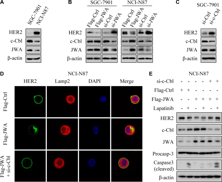 JWA negatively regulates HER2 expression via c-Cbl in GC cells ( A ) Western blotting was used to determine the expressions of HER2, c-Cbl and JWA in SGC-7901 and NCI-N87 cells. ( B ) SGC-7901 and NCI-N87 were transfected with Flag-JWA or JWA siRNA for 48 h, target proteins were determined with Western blot. ( C ) SGC-7901 cells were transfected with c-Cbl siRNA for 48 h, and western blotting showed the expression of target proteins. ( D ) NCI-N87 were transfected with Flag-Ctrl (top), Flag-JWA (middle), or cotransfected with Flag-JWA and c-Cbl siRNA (bottom) for 48 h. Immunofluorescence imaging of HER2 (green), the lysosome marker Lamp2 (red), nucleus labeled as DAPI (blue), the co-localization of the three signals (merge). ( E ) NCI-N87 cells were cotransfected with Flag-JWA and c-Cbl siRNA for 48 h, incubated with or without lapatinib (1 μM) for 24 h. Western blotting was used to determine the expression of target proteins.