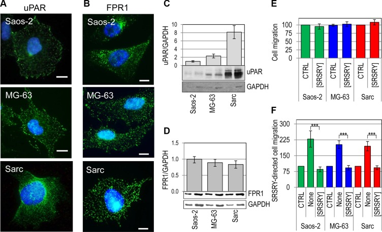 Inhibitory effect of [SRSRY] on migration of FPR1expressing osteosarcoma and chondrosarcoma cells ( A–B ) Representative images of human osteosarcoma Saos-2 and MG-63 cells, and human chondrosarcoma Sarc cells incubated with 2 μg/mL R4 anti-uPAR monoclonal antibody (A) or 1:100 anti-FPR1 polyclonal antibody 2 h at 23°C, exposed to Alexa 488-coniugated F(ab')2 fragment of rabbit anti-mouse IgG or goat anti-rabbit IgG for 40 min at 23°C and visualized by a fluorescence inverted microscope. Nuclei were stained blue with DAPI. Scale bar: 10 μm. Original magnification: 1000 x. ( C–D ) Whole cell lysates (20 and 40 μg/sample) from Saos-2, MG-63 and Sarc cells were resolved on a 10% SDS-PAGE under unreducing (C) or reducing conditions (D), followed by Western blotting with 1 μg/mL R4 anti-uPAR monoclonal antibody (C) or 1 μg/mL anti-FPR1 polyclonal antibody (D) and 0.2 μg/mL anti-GAPDH polyclonal antibody as loading control. The enclosed bar graphs show the average quantification of the uPAR/GAPDH (C) and FPR1/GAPDH (D) content from 3 independent experiments. ( E–F ) Saos-2, MG-63 and Sarc cells were allowed to migrate for 4 h at 37°C in 5% CO 2 in Boyden chambers toward DMEM (CTRL), or 10 nM [SRSRY] (E), DMEM (CTRL) or 10 nM SRSRY, in the absence (None) or the presence of 10 nM [SRSRY] (F). In all cases, the extent of cell migration was expressed as a percentage of the basal cell migration assessed toward serum-free medium, considered as 100% (CTRL). Data are expressed as the mean ± SD of three independent experiments, performed in triplicate. ***Statistical significance calculated against the positive control (None) with p