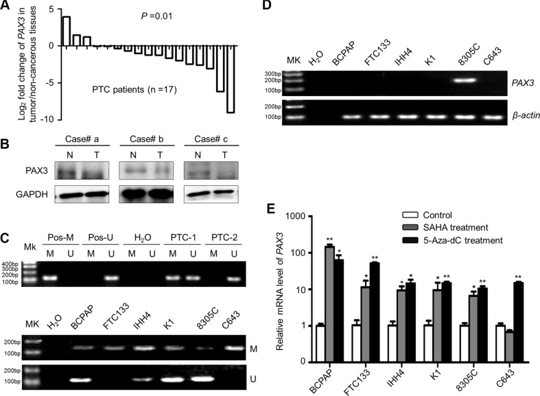 PAX3 inactivation by promoter hypermethylation in primary PTCs and thyroid cancer cell lines ( A ) qRT-PCR assay was performed to evaluate mRNA expression of PAX3 in primary PTCs and their matched non-cancerous thyroid tissues ( n = 17). PAX3 expression was normalized with 18S rRNA levels. Data are shown as Log2 fold change of PAX3 expression in tumor/non-cancerous tissues. ( B ) Western blotting was performed to analyze the protein levels of PAX3 in PTCs (T) and matched non-cancerous tissues (N). GAPDH was used as loading control. ( C ) Promoter methylation of PAX3 in primary PTCs (upper panel) and thyroid cancer cell lines (lower panel) was determined with MSP assay. In vitro methylated DNA was used as positive control for methylated gene (Pos-M), bisulfite-modified normal leukocyte DNA as positive control for unmethylated gene (Pos-U), and H 2 O as blank control to confirm the specificity of MSP. Mk, DNA marker; M, methylated gene; U, unmethylated gene. PTC-1 and -2 present two PTC cases with different methylation status of PAX3 . ( D ) PAX3 expression in thyroid cancer cell lines was determined by conventional RT-PCR. β-actin was run as loading control. ( E ) PAX3 expression was restored after treatment with 5-Aza-dC or SAHA. Its expression was determined by qRT-PCR. 18S rRNA was used as a normalized control. Data were presented as mean ± SD. Statistically significant differences were indicated: * P