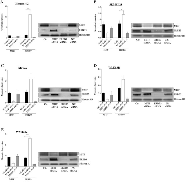 MITF suppresses ERBB3 expression at the transcriptional level in various cell lines after siRNA transfections Assessment of mRNA and protein levels of MITF and ERBB3 in a panel of cell lines 72h after siRNA-induced reduction of MITF and ERBB3. A. Hermes 4C (immortalized melanocytes). B. SKMEL28 (BRAFV600E) C. MeWo (NF1) D. WM983B (BRAFV600E) E. WM1382 (wild-type for BRAF and NRAS). Graphs represent qRT-PCR expression data from three separate experiments normalized to untreated control cells and plotted as mean ± SD. * = p