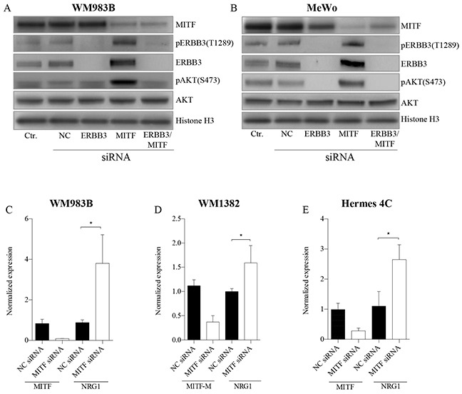MITF suppress the PI3K-pathway through NRG1-beta/ERBB3 signaling A-B. Representative western blots show the effect of MITF siRNA treatment on NRG1-beta/ERBB3 signaling pathway members, leading to p-AKT (S473) activation in WM983B (A) and MeWo (B) . Cell lines were transfected with MITF and ERBB3 siRNA alone and in combination for 72h, and treated either with or without (see Supplementary Figure S3A-S3B ) 10ng/ml NRG1-beta ligand 15min prior to harvesting. All experiments were performed in triplicate. Histone H3 was used as loading control. C-D. qRT-PCR data show mRNA elevation of NRG1-beta ligand after MITF depletion in WM983B (C) , WM1382 (D) and Hermes 4C (E). Graphs represent qRT-PCR expression data from three separate experiments normalized to untreated control cells and plotted as mean ± SD. * = p