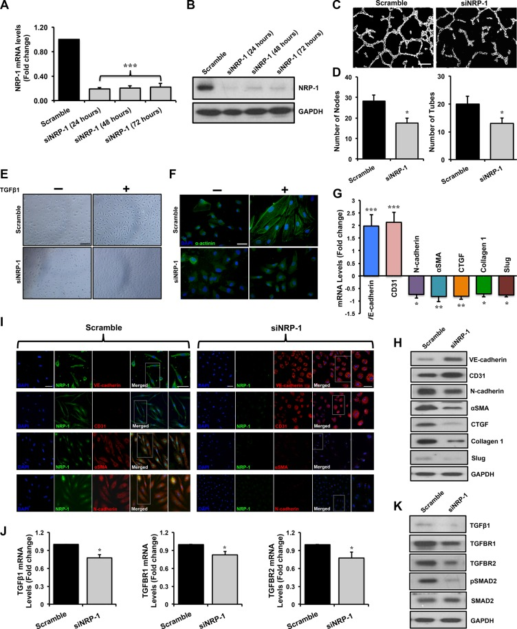 Loss of NRP-1 inhibits TGFβ1- induced EndMT in HUVECs. HUVECs were cultured and transfected with 5 nM of either siNRP-1 or scramble control Total RNA and protein was extracted from the transfected HUVECs at 24, 48 and 72 h post-transfection. ( A ) qPCR data demonstrate successful silencing of NRP-1 (~85% reduction) in siNRP-1 transfected HUVECs after 24 h. All qPCR data are presented as fold change to the scrambled control. ( B ) NRP-1 silencing was confirmed at protein level by immunoblotting at 24, 48 and 72 h after transfection. GAPDH was used as a loading control. ( C ) Representative images from capillary-like tube formation assay demonstrating reduced number of tubes in siNRP-1 compared to scramble control at 6 h. ( D ) Tube formation ability of HUVECs on Matrigel TM was quantified as number of nodes and number of tubes, showing that siNRP-1 caused a significant anti-angiogenic effect as compared to scramble control. * p