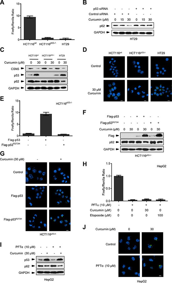 Curcumin controls p53 to induce autophagy uncorrelated to its transcriptional activity ( A ) Transcriptional activity analysis of p53 in HCT116 wt , HCT116 p53−/− and HT29 cancer cells. ( B ) Representative Western blot images in HT29 cells pre-transfected with p53 siRNA or control siRNA for 48 h, and then treated with curcumin for 6 h. ( C ) Representative Western blot images in HCT116 wt , HCT116 p53−/− and HT29 cells treated with curcumin for 6 h. ( D ) Representative images of autophagy detection were showed in HCT116 wt , HCT116 p53−/− and HT29 cells treated with curcumin for 6 h. ( E ) Transcriptional activity analysis of p53 in HCT116 p53−/− cancer cells infected with lentivirus expressing flag-p53 or flag-p53 R273H tag fusion. ( F ) Representative Western blot images in HCT116 p53−/− cells pre-infected with lentivirus expressing flag-p53 and flag-p53 R273H tag fusion, and then treated with curcumin for 6 h. ( G ) Representative images of autophagy detection in (F) were showed. ( H ) Transcriptional activity of p53 in HepG2 cells pre-treated with PFTα for 6 h and then treated with curcumin for 6 h or etoposide for 12 h. ( I ) Representative Western blot images in HepG2 cells pre-treated with PFTα for 6 h, and then treated with curcumin for 6 h. ( J ) Representative images of autophagy detection in (I) were showed. Scale bar: 10 μm.