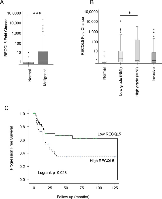 RECQL5 mRNA is increased in UCC and is associated with poor prognosis Taqman qRT-PCR quantification of mRNA from 197 primary bladder tumour and 20 normal tissue samples using a RECQL5 probe and plotted as fold change [ 52 ]. A. Stratified by normal compared to malignant tissue and B. according to tumour grade; * and *** indicate p