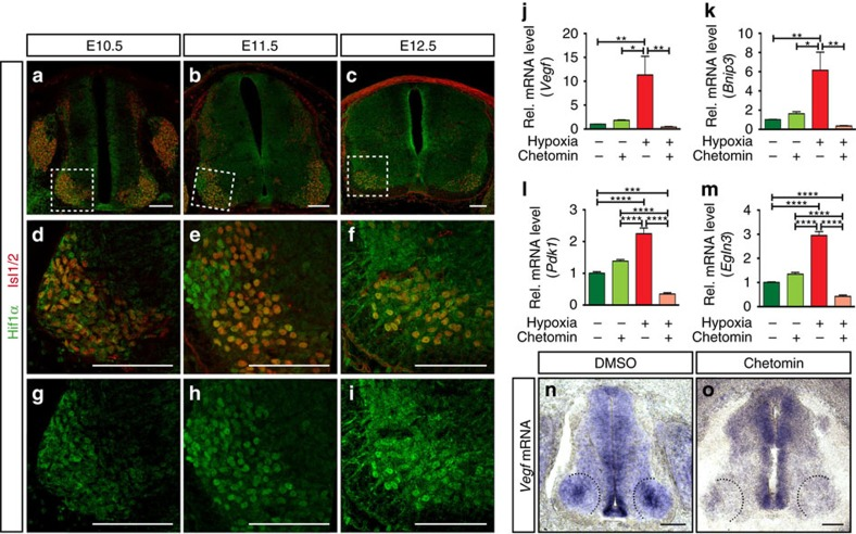 VEGF expression is regulated by HIF1α. ( a – c ) Representative images of SCs at the developmental stages indicated, showing HIF1α staining in post-mitotic MNs (Isl1/2 + ). ( d – i ) Higher magnifications of insets in a – c showing co-localization of HIF1α and Isl1/2 + ( d – f ) or just HIF1α staining ( g – i ). Note the changes of HIF1α nuclear localization during development. ( j – m ) qRT-PCR analysis of changes in expression levels of Vegf ( j ) and other prototypical HIF target genes ( Bnip3 ( k ) , Pdk1 ( l ) and Egln3 ( m )), when explants from mouse E11.5 MN columns are cultured under normoxia (20% O 2 ) (green bars) or hypoxia conditions (1% O 2 ) (red bars), with or without chetomin. Data are represented as mean±s.e.m. n =2 individual experiments done in triplicates. ( j ) * P =0.0161, ** P =0.0086 (normoxia versus hypoxia), ** P =0.0082 (hypoxia versus hypoxia+chetomin); ( k ) * P =0.0169, ** P =0.0056 (normoxia versus hypoxia), ** P =0.0018 (hypoxia versus hypoxia+chetomin); ( l ) *** P =0.0007, **** P