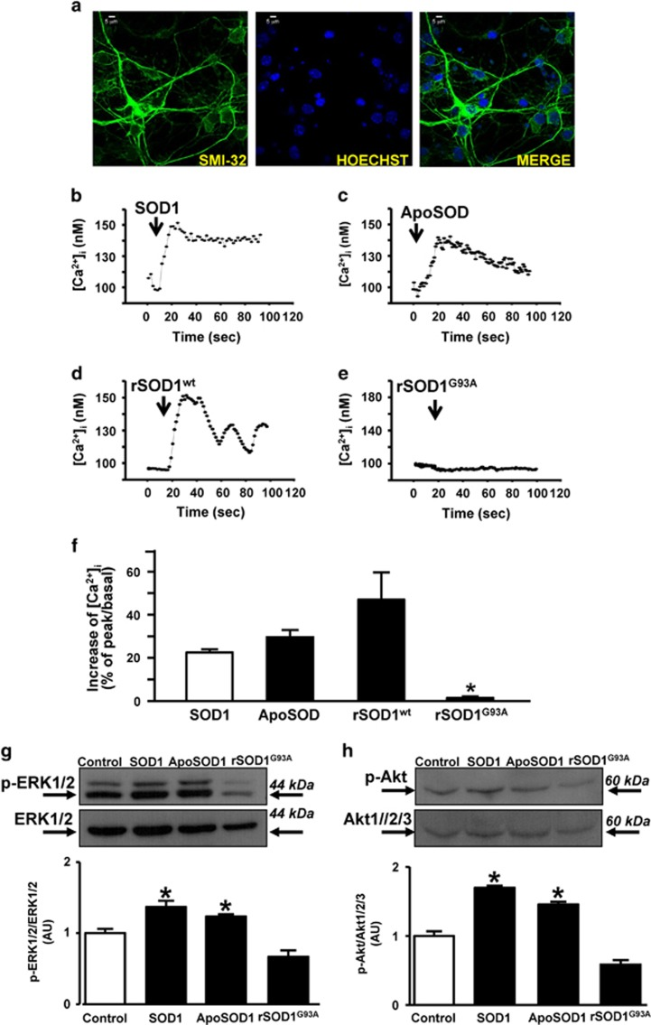 Effects of ApoSOD1, SOD1, rSOD1 wt and rSOD1 G93A on Ca 2+ /Akt/ERK1/2 signaling pathway in rat primary motor neurons. ( a ) Immunocytochemical images of SMI-32 and Hoechst. ( b – f ) Representative single-cell traces ( b – e ) and quantification ( f ) of the effect on [Ca 2+ ] i of SOD1 ( b ), ApoSOD1 ( c ), rSOD1 wt ( d ) and rSOD1 G93A ( e ), all at 400 ng/ml in normal Krebs solution. Data are expressed as mean±S.E. of three different experiments performed on 30/50 cells for each group. * P
