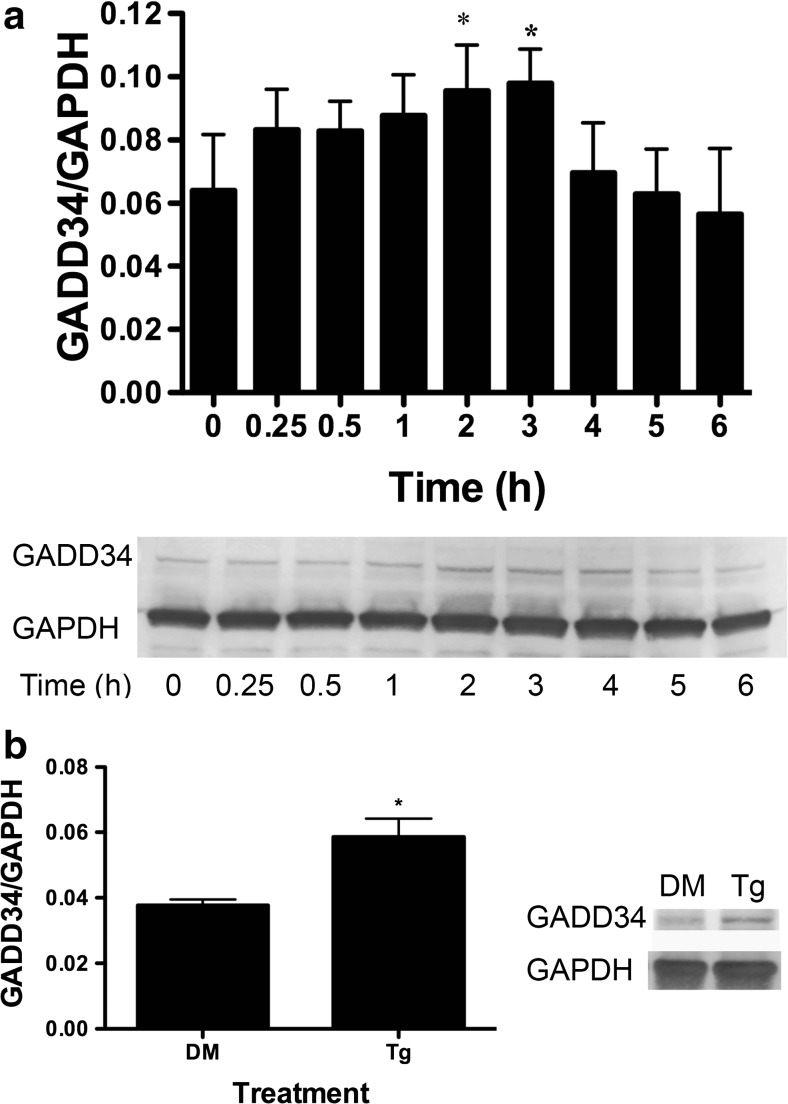 BA induces an increase in GADD34 protein in DU-145 cells. a DU-145 cells were treated with 10 μM BA for 0, 0.25, 0.5, 1, 2, 3, 4, 5, and 6 h. GADD34 was increased in cells at 2 ( p = 0.018, n = 3) and 3 h ( p = 0.011, n = 3). b DU-145 cells treated with 1 μM thapsigargin (Tg) or DMSO (DM) for 1 h, ( p