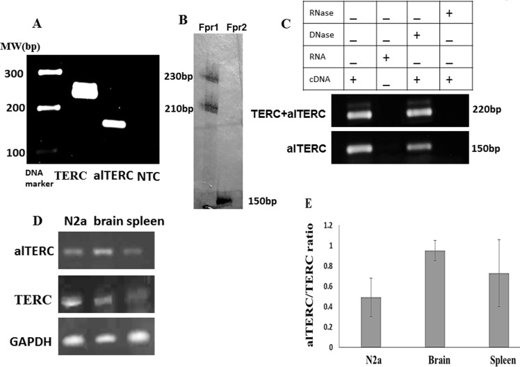 alTERC gene is transcribed to RNA in vivo in mouse organs and in vitro in mouse cell lines A. RNA was extracted from adult mouse brain, n = 3, cDNA was generated and subjected to PCR analysis using the set 1 primers for mTERC and set 2 primers for alTERC. Two bands of ~220 bp for mTERC and ~150bp for alTERC were observed. NTC- control, no cDNA. (A is a representative picture of 3 independent experiments). B. The PCR reaction described in A was carried out in the presence of radioactive nucleotide (dCTP [αp 32 ] and the reaction products were analysed by 14% polyacrylamide gel electrophoresis following autoradiography. Two bands of ~230 bp and ~210 bp were observed with set 1 primers (Fpr1) for mTERC and one band of ~150 bp with set primers 2 (Fpr2) for alTERC were detected. C. RNA was extracted from mouse NSC-34 motor neurons like cells followed by cDNA production in the presence or absence of <t>DNase</t> or <t>RNase</t> and subjected to PCR amplification as described in A using the set1 and set 2 primers. D. RNA was extracted from mouse organs (brain and spleen) or from mouse neuroblastoma cell line (N2a) and subjected to sqPCR analysis using the set 1 and 2 primers for TERC and alTERC and GAPDH primers as control. A Representative picture of 3 independent experiments. E. The results of experiments described in D were quantified by densitometric analysis with the EZQuant software, calculated relatively to GAPDH and the alTERC/TERC expression ratio was estimated. The data are means ± SD of 3 independent experiments.