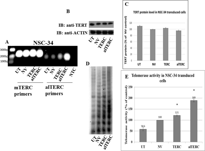 Stable overexpression of mTERC and alTERC increased telomerase activity in NSC-34 cells A. mTERC and alTERC were cloned into a retroviral vector and stable transduction of NSC-34 cells was performed. The expression of mTERC and alTERC in the transduced cells and in the control untransduced (UTr) or transduced with the empty vector (NV) cells were detected by PCR using the appropriate mTERC and alTERC primers. NTC- control without cDNA. B. TERT protein was detected by Western blot analysis with anti-TERT antibody and C. quantification of TERT protein relatively to the control β-actin protein was performed by densitometric analysis using the EZQuant software. The data are means ± SD of 3 independent experiments. D. Telomerase activity was measured by TRAP assay and, E. quantified by densitometric analysis using the EZQuant software. The results are % of the control NV and are means±SD, t Test, p