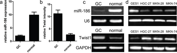 Relative miR-186 and Twist1 expression in GC tissues a., b. miR-186 and Twist1 expression levels in GC and normal tissues were analyzed using <t>qRT-PCR.</t> miR-186 and Twist1 expression were examined by qRT-PCR, and normalized to U6 and GAPDH expression (shown as ΔCT) *p