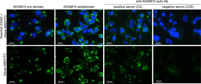 Immunofluorescence reactivity of IgG from patient sera on LoVo cell line ADAM10 pro-domain: reactivity of the rabbit polyclonal anti-ADAM10 pro-domain-specific Ab (ab39178, Abcam), which recognized the immature non-functional isoform of ADAM10, showed patched reactivity. ADAM10 ectodomain: reactivity of the goat polyclonal anti-ADAM10 ectodomain-specific Ab (R D-Systems, AB936), which recognized both the immature and mature (cleaved and functional) isoforms of ADAM10, showed patched and diffuse signals. Anti-ADAM10 auto-Ab positive serum: reactivity of the human IgG fraction purified from a representative serum (C2) of Crc patients considered positive for the presence of auto-Ab anti ADAM10, showed patched reactivity. Anti-ADAM10 auto-Ab negative serum: no reactivity was observed for the human IgG fraction purified from serum (C25) of a representative Crc patient considered negative for the presence of auto-Ab anti ADAM10. Cell nuclei were stained with Hoechst-33342. The reactivity of the secondary antibodies (goat anti-rabbit IgG Alexa-488; donkey anti-goat IgG Alexa-488 and goat anti-human IgG FITC) are shown as negative controls in SM-Figure 3 . Images were acquired by immunofluorescence microscopy (Zeiss Upright Axo Imager 2 equipped with AxoVision Rel.4.8.2 software); magnification 63X. Images were linearly adjusted for brightness and contrast using Adobe-Photoshop CS4 v.11 software.