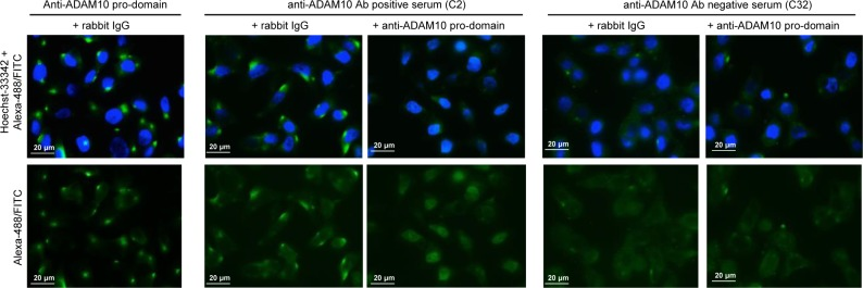 Immunofluorescence reactivity after competition with anti ADAM10 pro-domain Ab Anti-ADAM10 pro-domain: reactivity of the rabbit anti-ADAM10 pro-domain Ab (ab39178, Abcam) after competition with control rabbit IgG. Anti-ADAM10 positive serum (C2): reactivity of the IgG fraction purified from a representative serum of a Crc patient considered positive for the presence of auto-Abs anti ADAM10 after competition either with control rabbit IgGs or the anti-ADAM10 pro-domain Ab. Anti-ADAM10 negative serum (C32): reactivity of the IgG fraction purified from a representative serum of a Crc patient considered negative for the presence of anti ADAM10 auto-Ab after competition either with control rabbit IgGs or anti-ADAM10 pro-domain Ab. Cell nuclei were stained with Hoechst-33342; secondary Abs were goat anti-rabbit IgG Alexa-488 and goat anti-human IgG FITC. Images were acquired by immunofluorescence microscopy (Zeiss Upright Axo Imager 2 equipped with AxoVision Rel.4.8.2 software); magnification 63X. Images were linearly adjusted for brightness and contrast using Adobe-Photoshop CS4 v.11 software.