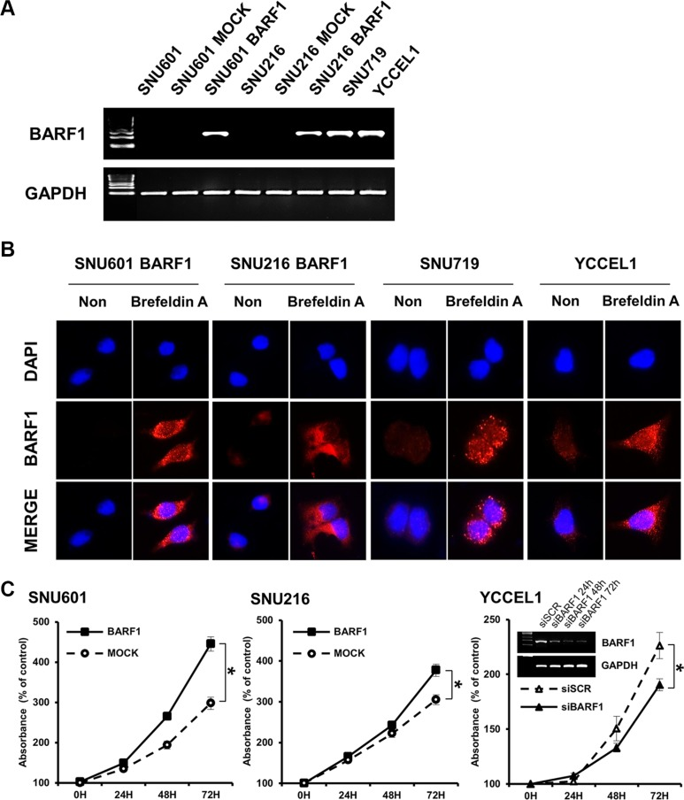 EBV BARF1 protein was mainly secreted and promoted cell proliferation ( A ) BARF1 mRNA was detected in SNU601 BARF1 and SNU216 BARF1 cells (stable transfection with BARF1) and in naturally Epstein-Barr virus (EBV)-infected stomach cancer cells (SNU719 and YCCEL1), whereas it was undetectable in SNU601 mock cells and SNU216 mock cells. ( B ) As seen by fluorescence microscopy, BARF1 protein was hardly observed in SNU601 BARF1 cells and was weakly detected in SNU216 BARF1, SNU719 and YCCEL1 cells, whereas BARF1 protein accumulated in cells that were treated with Brefeldin A. BARF1 antibody (MAb 6F4) was labeled in red, and nuclei were counterstained with DAPI (blue). ( C ) Cell proliferation was higher in SNU601 BARF1 and SNU216 BARF1 cells than in SNU601 mock cells and SNU216 mock cells, respectively, and lower in YCCEL1 cells transfected with BARF1-specific siRNA (siBARF1) than in YCCEL1 cells transfected with scrambled siRNA (siSCR) (* P