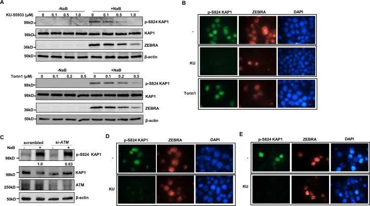 ATM induces phosphorylation of KAP1 at S824 upon exposure to lytic trigger. A. HH514-16 BL cells were treated with increasing amounts of PI3 kinase-related kinase inhibitors (KU-55933 or Torin1; left panels) or PI3KK inhibitors plus NaB (right panels). After 24 hours, cells were harvested and lysates analyzed via immunoblotting with the antibodies indicated. B. HH514-16 cells were treated with NaB (upper panel) or NaB plus KU-55933 (1μM; middle panel) or NaB plus Torin1 (0.5μM; lower panel) for 24 hours and stained with anti-phospho KAP1 (S824) plus anti-ZEBRA antibodies and visualized at 1000X magnification. C. HH514-16 cells were transfected with scrambled siRNA or siRNA to ATM , treated with NaB after 24 hours and harvested after another 24 hours. Cell lysates were analyzed by immunoblotting with the antibodies indicated. Numbers below p-S824 KAP1 blot indicate relative amounts of pKAP1 after normalization to total KAP1. D. HH514-16-derived CLIX-FZ cells were exposed to doxycycline (upper panel) or doxycycline plus KU-55933 (lower panel) for 24 hours and stained with anti-p-S824 KAP1 plus anti-ZEBRA antibodies and visualized at 1000X magnification. E. Lymphoblastoid cells were transfected with pHD1013-Z plasmid and simultaneously treated with vehicle (-KU) or KU-55933. Treated cells were harvested 24 hours later and subjected to staining with anti-phospho KAP1 (S824) plus anti-ZEBRA antibodies and visualized at 1000X magnification. Experiments were performed twice.