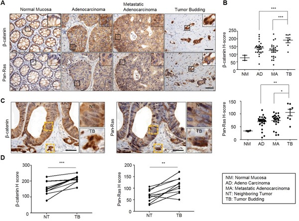 Both β-catenin and Ras levels are increased in adenocarcinoma, metastatic adenocarcinoma and tumor budding in colon cancer TMA specimens of normal mucosa, adenocarcinoma, metastatic adenocarcinoma, or tumor buddings were subjected to the IHC analyses by using β-catenin or Ras antibody followed by 3, <t>3'-diaminobenzidine</t> (DAB) staining. A. Representative image of IHC analyses for β-catenin and Ras in normal tissues and at different stages of colorectal tumorigenesis. Boxes indicate the enlarged areas. Scale bar= 50μm. B., D. Quantitative analyses of positive signal were performed by comparing the H-Scores of staining for β-catenin and Ras in TMA samples. Normal Mucosa (n=2), Adenocarcinoma (n=26), Metastatic adenocarcinoma (n=24), Tumor budding (n=7). C. Representative images of IHC analyses for β-catenin and Ras in tumor budding compared with a neighboring adenocarcinoma in colon cancer TMA samples. The yellow boxes represent enlarged in the right panel. Scale bar= 50μm. D. Quantitative analysis for β-catenin and Ras was performed by comparing tumor budding with neighboring adenocarcinoma based on H-Score (n=10). Two-sided Student t test was used to determine statistical significance using GraphPad Prism5 Software. Error bars represent 95% confidence intervals.