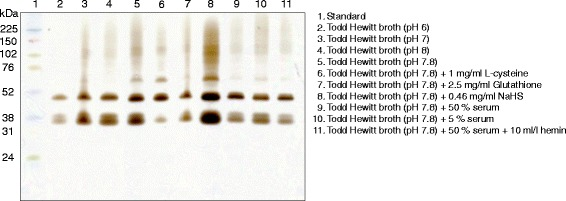 The effect of the environmental conditions on the activity of H 2 S-producing enzymes was tested for Fusobacterium <t>nucleatum</t> polymorphum ATCC 10953. The bacteria were grown in different broths before protein extraction and 1D gel electrophoresis followed by in-gel activity assay