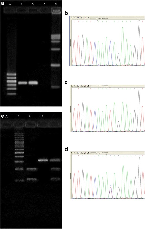 PCR amplification products of exon 13 of BSEP gene and confirmation of the SNP rs2287622 genotypes by nucleotide sequencing and RFLP. 1.1 amplification product of exon 13 of BSEP gene. a .DNA Marker I (Shanghai yuanye biotechnology Co., Ltd., China); b , c :cases; d :blank; e :DNA MarkerVI (Shanghai yuanye bio-technology Co., Ltd., China). 1.2 CC 1.3 TT 1.4 TC: Confirmation of rs2287622 genotypes by nucleotide sequencing. 1.5 Confirmation of rs2287622 genotypes by RFLP. a .blank; b .100bp DNA Ladder Marker (Beijing BLKW biotechnology Co., Ltd., China); c . rs2287622 genotype CC; d . rs2287622 genotype TT; e .rs2287622 genotype TC