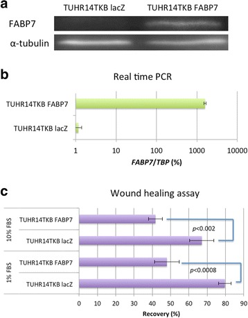Effect of FABP7 on the migration of TUHR14TKB cells. TUHR14TKB cells were transfected with the FABP7 or lacZ expression vector. a Western blot analysis of FABP7 expression by cells transfected with the FABP7 vector or control (lacZ) vector. b Real-time PCR analysis of FABP7 expression in cells transfected with the FABP7 vector or lacZ vector. c Wound-healing assays. TUHR14TKB transfectants were cultured in RPMI 1640 medium containing with 10% FBS or 1% FBS with 5 mg/L blasticidin S HCl, 0.3 g/L G418, and 1 mg/L doxycycline hyclate. The data represent the average and standard deviation (error bars) of four experiments