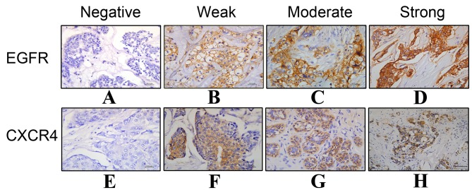 Immunohistochemical staining of (A-D) EGFR and (E-H) CXCR4 expression in breast cancer. (A) Negative expression (−) of EGFR; (B) weak expression (+) of EGFR; (C) moderate expression (++) of EGFR; (D) intense expression (+++) of EGFR; (E) negative expression (−) of CXCR4; (F) weak expression (+) of CXCR4; (G) moderate expression (++) of CXCR4; (H) intense expression (+++) of CXCR4. Magnification, 400x; scale bar, 100 µm. EGFR, epidermal growth factor receptor; CXCR4, C-X-C motif chemokine receptor type 4.
