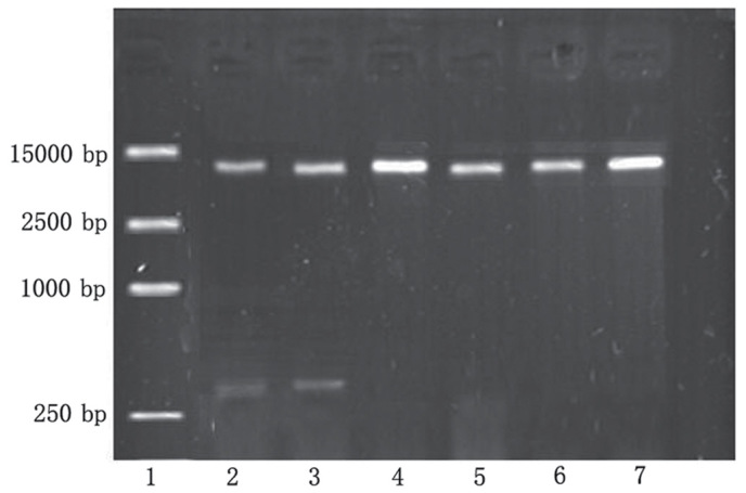 Successful establishment of the human serum albumin-p olyethylenimine-pcDNA-Apoptin expression vector was confirmed by 1% agarose gel electrophoresis. Lane 1, DL15000 DNA marker. Lanes 2 and 3, pcDNA-Apoptin was digested by Eco RI and Xba I restriction enzymes, and produced two fragments: apoptin at 376 bp and p-enhanced green fluorescent protein (EGFP)-N1 at 5,000 bp. Lanes 4 and 5, pEGFP-N1 was digested by Eco RI and Xba I restriction enzymes, and produced only one fragment at 5,000 bp. Lanes 6 and 7, the pEGFP-N1 plasmid.