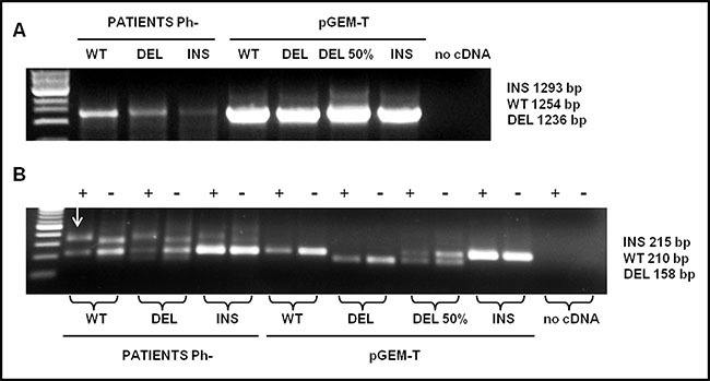 Detection analysis by PNA directed PCR clamping of CALR type-1 (DEL) and type-2 (INS) mutations ( A ) Step I: cDNA amplification of patients with CALR wild-type (WT), type-1 (DEL) and type-2 (INS) mutations. pGEM-T- CALR wild-type (WT), pGEM-T- CALR type-1 mut (DEL), pGEM-T- CALR type-1 mut 50% vs. wild-type (DEL 50%) and pGEM- CALR type-2 mut (INS) were used as PCR positive control. 5 μL of each amplifier were loaded on 1% Agarose-TBE 1x gel with 5 μg/mL ethidium bromide (EtBr) and run at 120 V for 30 minutes. ( B ) Step II: PCR amplification of a small area of CALR gene, containing type-1 and type-2 mutations, was carried-out in absence (−) or in presence (+) of PNA probe. The plasmids amplified in the step I were used, in a dilution of 1:100, in the step II in order to interpret the results, 10 μL of each amplifier were loaded on 2% Agarose-TBE 1x gel with 5μg/mL EtBr and run at 100 V for 30 minutes and than at 65 V for 15 minutes. The arrow indicates the non-specific band present in the amplified of patients.