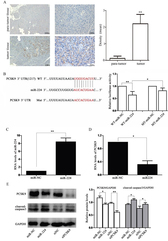 miR-224 down-regulates PCSK9 expression by directly targeting its 3′-UTR A . PCSK9 expression was increased in tissue samples of p-NENs. Immunohistochemistry of PCSK9 in tumor and para-tumor samples from patients with NENs (n=6, 3 males and 3 females). There was almost non-staining of PCSK9 in the para-tumor samples, while strong staining of PCSK9 in tumor samples. B . RNA sequence alignment showed the 3′-UTR of PCSK9 mRNA contains a complementary site for miR-224. Dual luciferase reporter assay was performed to confirm the miR-224 binding target. C, D . RT-PCR analysis showed that the miR-224 expression was up-regulated and PCSK9 expression was down-regulated in BON-1 cells upon miR-224 transfection at mRNA levels. E . western blot analysis showed that the endogenous PCSK9 expression was significantly reduced at protein level followed by increased expression of cleaved caspase-3 upon miR-224 agomir or siPCSK9 transfection.