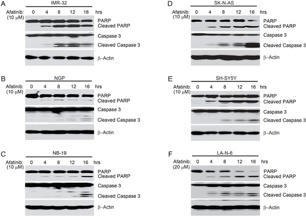 Afatinib induces apoptosis in NB cells A-F. IMR-32, NGP, NB-19, SK-N-AS and SH-SY5Y and LA-N-6 cells were treated with afatinib (10 μM or 20 μM) for various time points (0-16 hrs). At the end of treatment, cells were harvested and cell lysates were subjected to SDS-PAGE, and then immunoblotted with the indicated antibodies. β-Actin was used as a loading control.