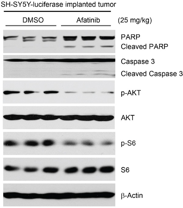 Afatinib induces apoptosis by blocking PI3K/AKT/mTOR signaling in an orthotopic xenograft NB mouse model The mice bearing SH-SY5Y-luciferase cells xenografted tumors for four weeks were treated with either afatinib (25 mg/kg) or an equal volume of DMSO by i.p. injection daily for three days. Four hours after the last treatment, the mice were sacrificed and the tumors were harvested and lysed for immunoblotting with the indicated antibodies. β-Actin was used as a loading control.