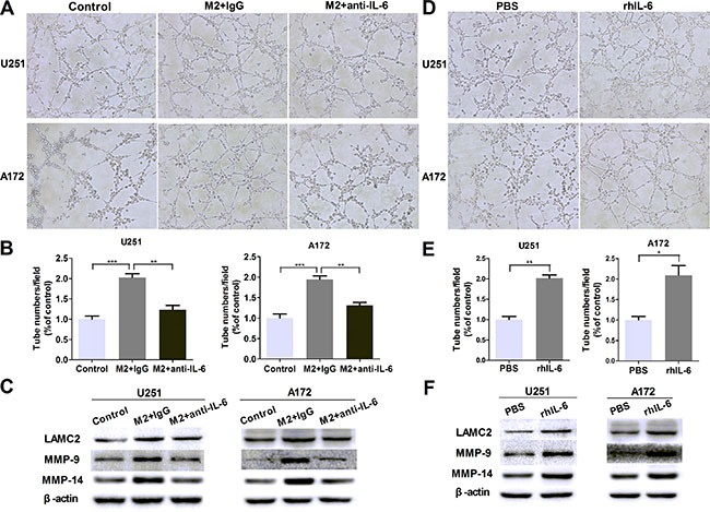 IL-6 upregulation is responsible for VM promotion in glioma cells ( A , B ) Glioma cells were treated with DMEM medium or M2-CM in the presence or absence of anti-IL-6 at 1 μg/ml, or isotype-matched IgG (IgG) control for 24 hours. Representative images (A) and quantification (B) of tubule formation assay on Matrigel matrix in vitro (×100). ( C ) As previously treatment, the protein levels of VM markers were then detected by Western blotting. ( D , E ) Glioma cells were treated with rhIL-6 in a concentration of 100 ng/mL or PBS control for 24 hours. Representative images (D) and quantification (E) of tubule formation assay on Matrigel matrix in vitro (×100). ( F ) VM markers protein of glioma cells, alone or after cultured with rhIL-6. Each bar represents the mean ± SEM ( n = 3). * P