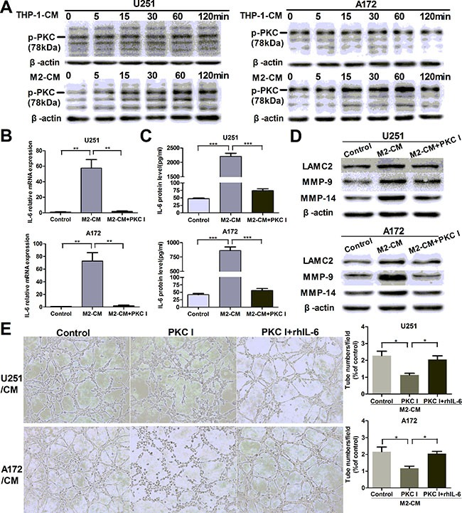 M2-enhanced IL-6 and VM in glioma cells via PKC pathway ( A ) Glioma cells were incubated with THP-1-CM or M2-CM for indicated time, the phosphorylation of PKC (p-PKC, Pan) was determined by Western blotting. ( B , C ) Glioma cells were incubated with DMEM medium, M2-CM or M2-CM containing Bisindolylmaleimide I (PKC I) for 24 h, IL-6 transcription (B) and concentration (C) in CM were determined by qRT-PCR and ELISA respectively. ( D ) As previously treatment, the protein levels of VM markers were then detected by Western blotting. ( E ) Representative images and quantification of tubule formation assay in glioma cells incubated in M2-CM, M2-CM containing Bisindolylmaleimide I or M2-CM containing Bisindolylmaleimide I with rhIL-6 for 24 h (×100). Each bar represents the mean ± SEM ( n = 3). * P
