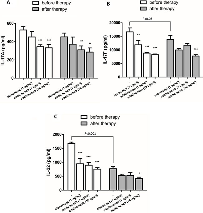The in vitro effects of etanercept and adalimumab on Th17-related cytokine production by Th17-polarized cells from an RA patient undergoing Enbrel™ treatment Th17-polarized cells induced from CD4 + T cells that were collected from an RA patient 2 h before (at the trough level) and 48 h after (at the peak level) of Enbrel™ injection. The in vitro effects of etanercept (1 μg/mL) and adalimumab (1 and 10 μg/mL) on IL-17A, IL-17F and IL-22 production in Th17-polarized cells were determined by ELISA. P -values indicate comparison of the cytokine levels before and after Enbrel™ injection. ( A ) IL-17A production by Th17-polarized cells isolated from the RA patient 2 h before and 48 h after Enbrel™ injection was significantly suppressed by in vitro treatment with adalimumab (1 and 10 μg/mL) but not etanercept (1 μg/mL). ( B ) IL-17F and ( C ) IL-22 production was significantly suppressed by in vitro treatment with etanercept (1 μg/mL) and adalimumab (1 μg/mL) when cells were isolated from the RA patient 2 h before but not 48 h after Enbrel™ injection. In vitro pretreatment with adalimumab (10 μg/mL) significantly suppressed IL-17F and IL-22 production both before and after Enbrel™ injection. The bars represent the means ± standard deviations from three independent experiments. * P