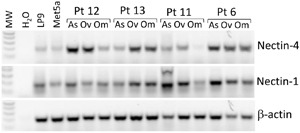 Nectin-4 and Nectin-1 are expressed in human mesothelial cells and ovarian cancer patient samples <t>RT-PCR</t> analysis of Nectin-4 and Nectin-1 expression in human mesothelial cell lines LP9 and Met5a, and matched samples from four patients with high grade serous ovarian cancer: ascites cells (As), primary ovarian tumor (Ov), and omental metastases (Om). Nectin-4 <t>RNA</t> was expressed in all of the samples, at variable levels. Nectin-1 RNA was more consistently expressed across samples. β-actin, loading control.