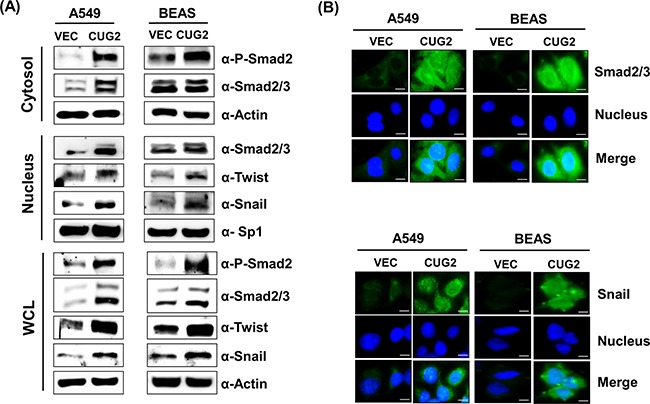 Overexpression of CUG2 activates TGF-β signaling A . Expression of phospho-Smad2, Smad2/3, Snail and Twist in A549-CUG2 and BEAS-CUG2 cells was compared with those in their control cells by immunoblotting. In addition, the cells were fractionated into cytosolic and nuclear extracts. Expression of the same proteins was detected by immunoblotting. Sp1 and actin were used loading controls for nuclear and cytosolic extracts, respectively. B . A549-Vec, A549-CUG2, BEAS-Vec and BEAS-CUG2 cells were incubated on chamber slide followed by fixation and permeabilization. Expression of Smad2/3 or Snail was detected by immunofluorescence using Alexa Fluor 488-conjugated goat anti-rabbit IgG (green). For nuclear staining, DAPI was added prior to mounting in glycerol. Scale bar indicates 10 μm.