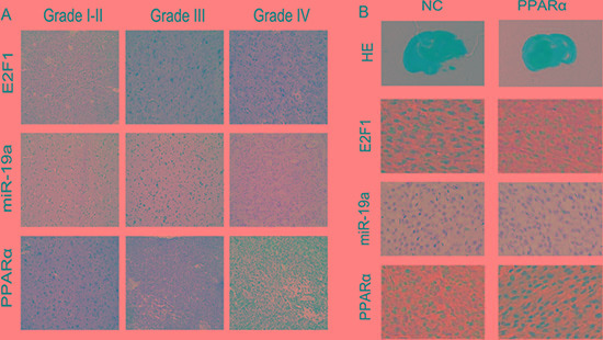 E2F1/ miR-19a/ PPARα signaling was confirmed in human glioma tissues and in nude mice orthotopic glioma model ( A ) Expression of E2F1, miR-19a and PPARα in human glioma tissues by IHC and ISH. ( B ) E2F1/ miR-19a/ PPARα feedback loop was confirmed in nude mouse orthotopic glioma model.