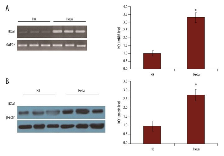 The expression of IKCa1 mRNA and protein are elevated in HeLa cells. ( A ) RT-PCR was used to detect IKCa1 mRNA expression with GAPDH as a loading control. ( B ) IKCa1 protein expression was detected using Western blot in HeLa cells with β-actin used as a loading control. In both A and B ( right ), mRNA or protein levels were quantified by measurement of the optical density of the samples compared to the optical density of the loading controls. Mean values ±SE of gene or protein expression from 3 independent cell preparations for HeLa and H8. * P