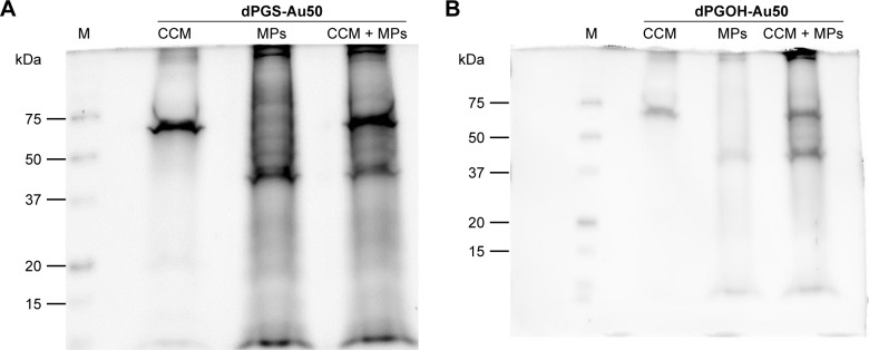 Pull-down experiment of serum pre-incubated dPGS-Au50 or dPGOH-Au50 with purified membrane fractions. Notes: The dPGS-Au50 ( A ) and dPGOH-Au50 ( B ) NPs were incubated with RPMI-1640 medium serum containing 10% FBS (CCM), with isolated MPs or were first pre-incubated with RPMI-1640 medium containing 10% FBS and then incubated with MPs (CCM + MPs). Proteins were eluted from NP surfaces using Laemmli buffer and analyzed by SDS-PAGE. Eluted proteins were visualized by Coomassie and the identified by <t>nanoHPLC</t> coupled with <t>MALDI-TOF/TOF.</t> Abbreviations: NP, nanoparticle; FBS, fetal bovine serum; MPs, membrane proteins; CCM, complete cell culture medium; SDS-PAGE, sodium dodecyl sulfate polyacrylamide gel electrophoresis; nanoHPLC, nano high performance liquid chromatography; MALDI, matrix-assisted laser desorption ionization; TOF, time of flight.