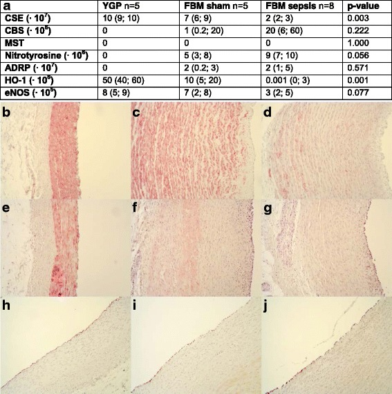 a Quantification of densitometric analysis of immunohistochemistry. Data are presented as median (IQR). Representative pictures ×10. b CSE YGP, c CSE FBM sham, d CSE FBM sepsis, e <t>HO-1</t> YGP, f HO-1 FBM sham, and ( g ) HO-1 FBM sepsis. b – g show a cross-section of the vessel wall with the luminal side to the right . h eNOS YGP, i eNOS FBM sham, and ( j ) eNOS FBM sepsis. h – j show a cross-section of the vessel wall with the luminal side to the upper left corner