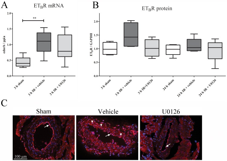 (A) The mRNA expression levels of ET B R in the myocardium and left anterior descending artery (LAD) homogenates in sham, ischemia-reperfusion (IR), and IR+U0126 treated rats at 3 h of IR resulted in up-regulated ET B R mRNA compared to sham. After U0126 treatment, there was no significant upregulation as compared to sham (n = 5–8) (one-way ANOVA with Bonferroni's multiple comparison test). (B) Western blot analysis revealed an ET B receptor band at approximately 50 kDa. Quantification of ET B receptor immunoreactivity (normalized to GAPDH) revealed increased ET B receptor protein levels ( P