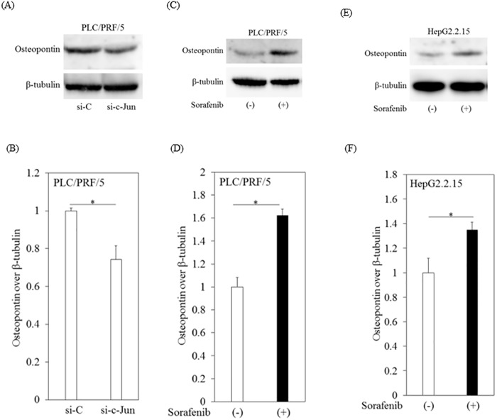 Sorafenib enhanced expression of osteopontin, an AP-1 target gene, in human hepatoma cell lines. (A, B) Knockdown of c-Jun decreased expression of osteopontin after 48 hours of transfection into PLC/PRF/5 cells with siRNA against c-Jun (si-c-Jun) or si-control (si-C). Lysates from transfected cells were immunoblotted with antibodies against osteopontin or β-tubulin. β-tubulin was used as internal control. (C, D) Western blot analyses of osteopontin and β-tubulin expression in PLC/PRF/5 cells treated with or without 10 μM sorafenib for 12 hours. (E, F) Western blot analyses of osteopontin and β-tubulin expression in HepG2.2.15 cells treated with or without 10 μM sorafenib for 12 hours. Densitometric analyses were performed with ImageJ software. Data are presented as mean ± SD of triplicate samples. * p