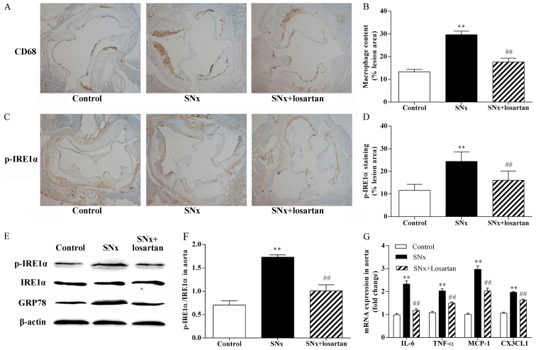 Effects of losartan treatment on vascular inflammation and ER stress in uremic mice. The co-localization of CD68 and p-inositol-requiring 1α (IRE1α) was examined by immunohistochemistry using adjacent sections. (A and B) Quantitative analysis of macrophages content in lesion plaques. Immunohistochemistry with CD68, original magnification, ×40. n=10, 11, 10 for the control, SNx and SNx + losartan groups, respectively. (C and D) Quantitative analysis of p-IRE1α in lesion plaques in mice. Immunohistochemistry with p-IRE1α; original magnification, ×40. (E and F) Western blot analysis of the activation of IRE1α and the expression of glucose-regulated protein 78 (GRP78) in aortas of mice. n=5, 6, 5 for the control, SNx and SNx + losartan groups, respectively. (G) RT-qPCR analysis of pro-inflammatory cytokine and chemokine gene expression in aortas. n=5, 5, 5 for the control, SNx and SNx + losartan groups, respectively. Data are the means ± SEM. ** P