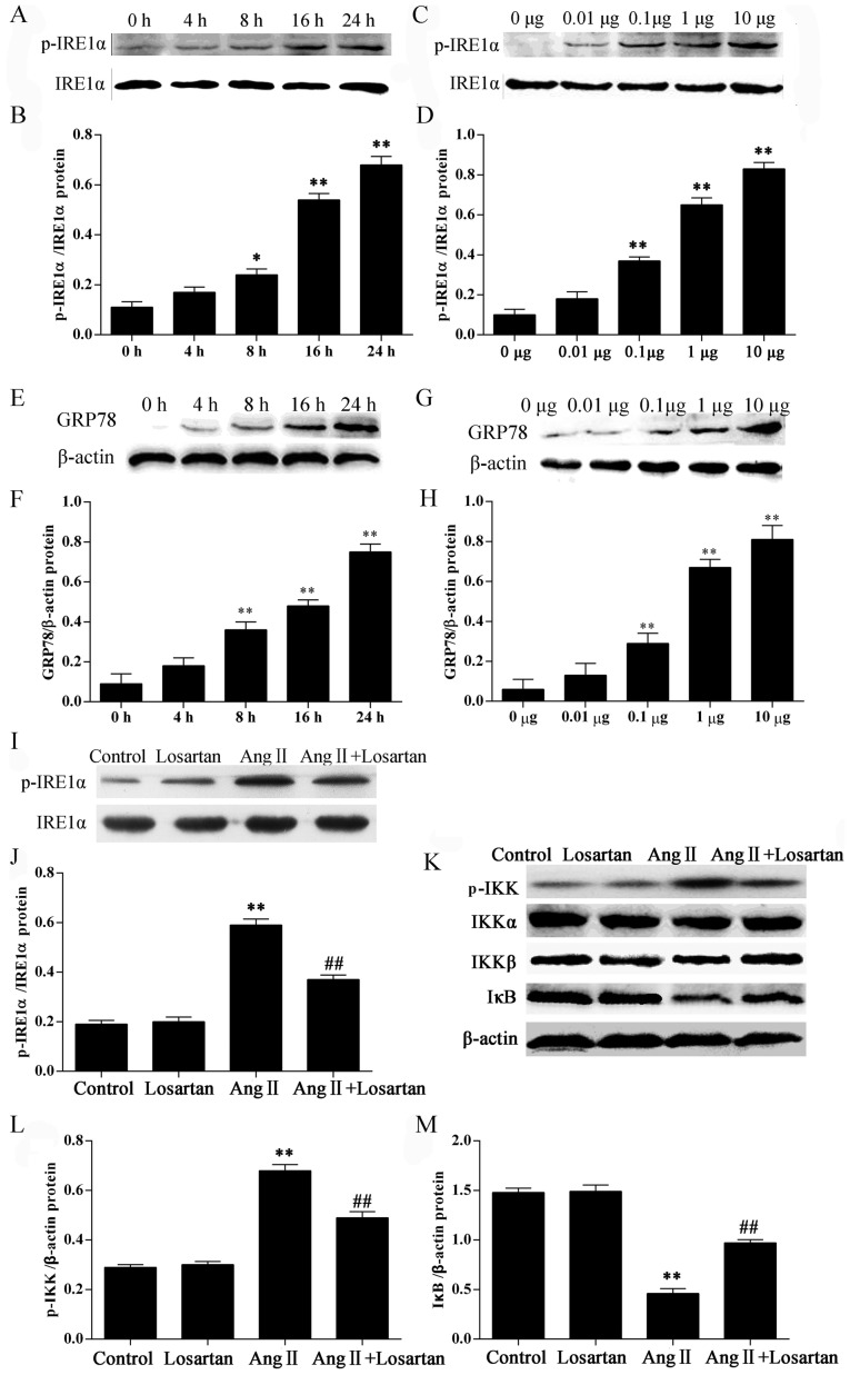 Effects of losartan on the expression of ER stress marker proteins and nuclear factor-κB (NF-κB) inhibitor protein IκB in angiotensin II (Ang II)-stimulated RAW264.7 macrophages. RAW264.7 macrophages were stimulated with 1 μ g/ml Ang II for 4, 8, 16 and 24 h [for inositol-requiring 1α (IRE1α) activation (A and B); for glucose-regulated protein 78 (GRP78) (E and F)] or with 0.01, 0.1, 1, or 10 μ g/ml Ang II for 24 h [for IRE1α activation (C and D); for GRP78 (G and H)] and examined by western blot analysis. Culture medium was used as a blank control. (I–M) Western blot analysis of the activation of IRE1α, IKKα/β and IκB. The results were expressed as the means ± SD. n=3 independent experiments; * P