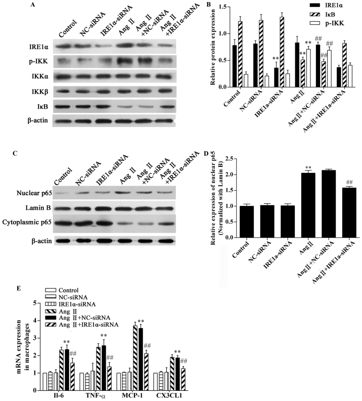Effects of inositol-requiring 1α (IRE1α) siRNA on the angiotensin II (Ang II)-induced inflammatory response in RAW264.7 macrophages. The RAW264.7 macrophages transfected with or without IRE1α siRNA were stimulated with 1 μ g/ml Ang II for 8 h and then subjected to western blot analysis and gene expression analysis. Western blot analysis of the expression of (A and B) IRE1α, p-IKK, IKKα/β, IκB, and (C and D) NF-κB p65. (E) RT-qPCR analysis of the gene expression of the indicated cytokines. The results were expressed as the mean ± SD. n=3 independent experiments; ** P
