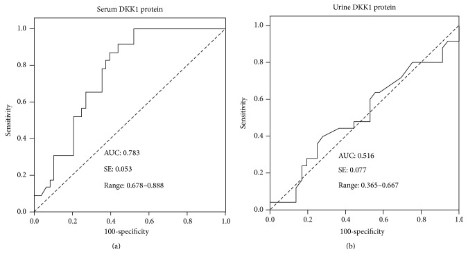 ROC curve for DKK-1 in active lupus nephritis. (a) ROC curve for serum DKK-1 in active lupus nephritis. (b) ROC curve for urine DKK-1 in active lupus nephritis.